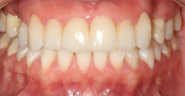 Reabilitação estética com implante, coroa de porcelana e facetas